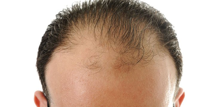 Can Male Pattern Baldness Be Prevented Biconi Gorgeous Male Pattern Baldness